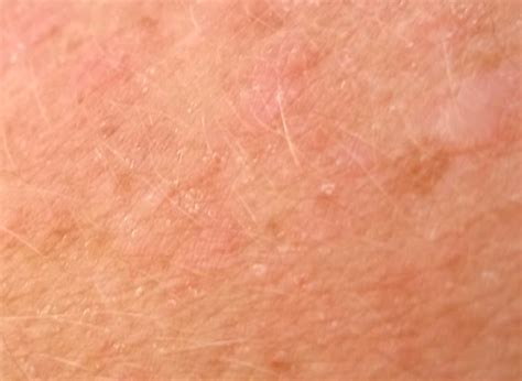 lupus and acne skin problems picture 2