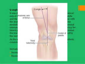 degererative joint disease picture 14
