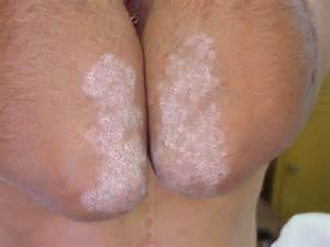 dry crusty skin on penis picture 5