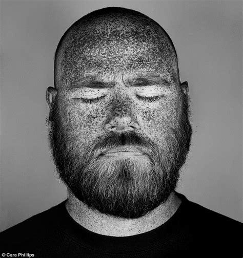 skin under balck light sun damage picture 4