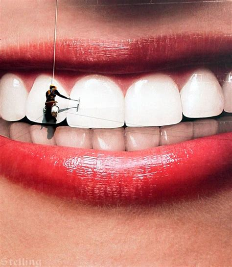 orlando teeth whitening picture 3
