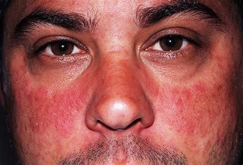 allergic reaction lips picture 7