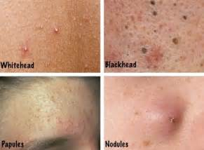 different types of skin sores picture 9