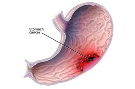 gastrointestinal illness picture 9