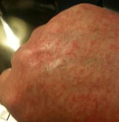 hand skin rash picture 2