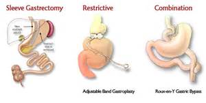 gastric byp weight loss surgeries picture 13