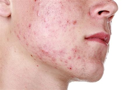 acne breakouts and treatment picture 15