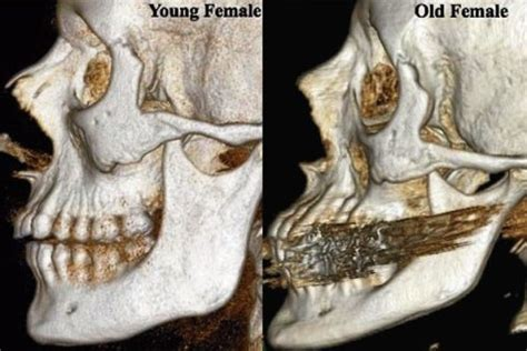 aging muscle lose picture 15