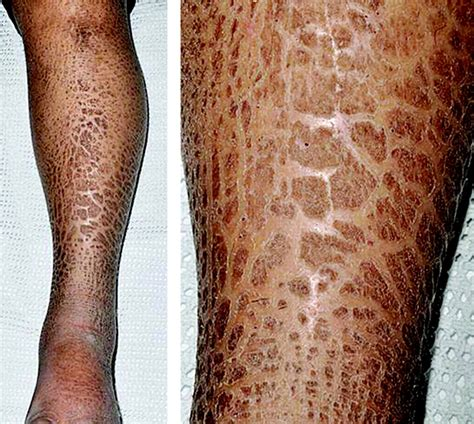 picture of skin disease picture 5
