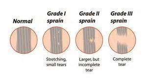 care for muscle tares and sprains picture 6