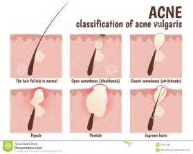 problem for acne pimples whitehead which gel for acne picture 5