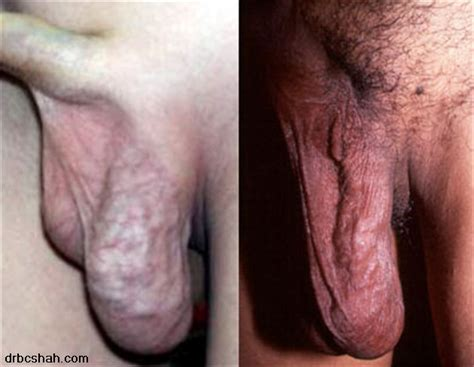 dark spot along vein on penis picture 11