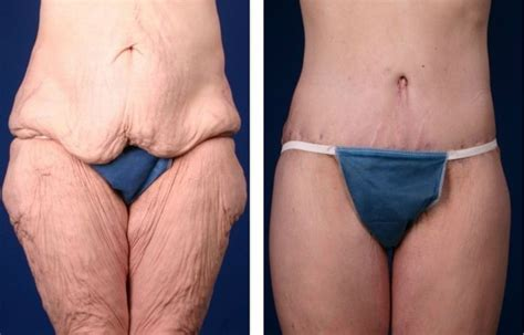 Lose skin after weight loss picture 2