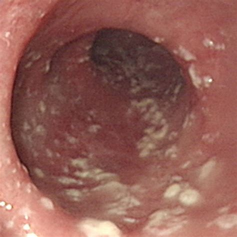 cause of esophagus yeast picture 9
