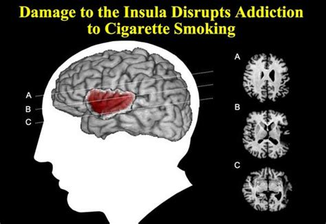 stop smoking drug picture 2