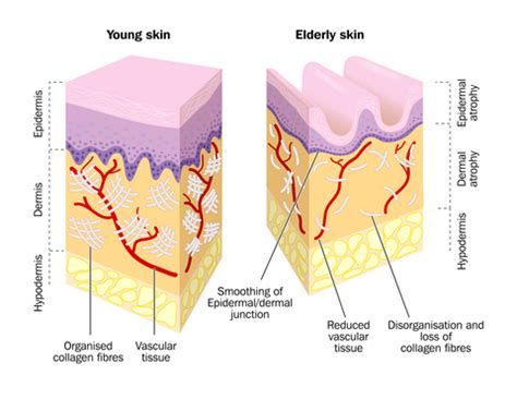 c4 what causes stretch marks picture 19