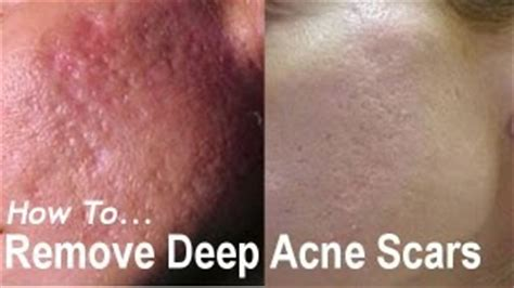 acne scar lasers in poland warsaw picture 12