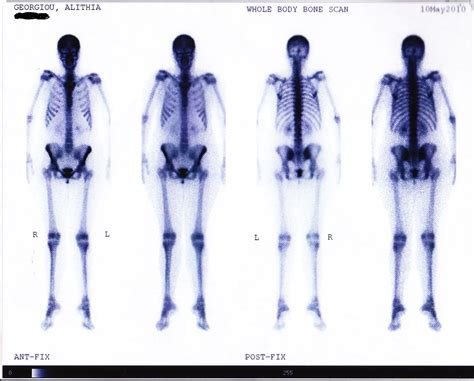 full bladder on a bone scan picture 2