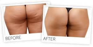 the new hislim-s cellulite slim solution machine picture 1