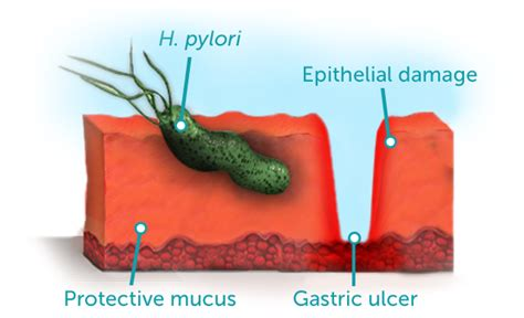 cause of bacterial infection in the stomach picture 19