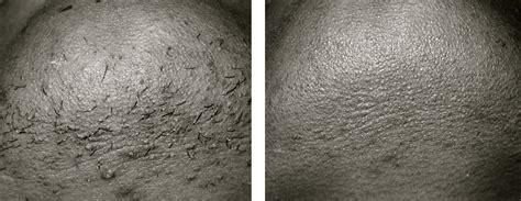 alpharetta hair removal picture 3