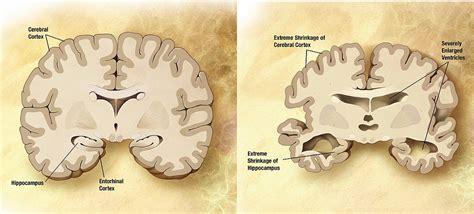cognitive le cerbvas disease picture 1
