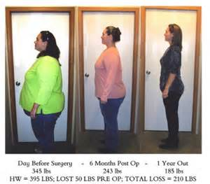 weight loss surger picture 7