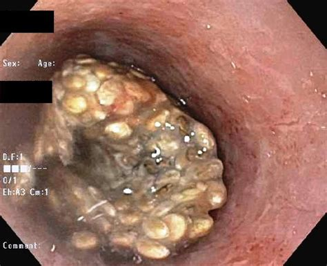 bowel strictures picture 11