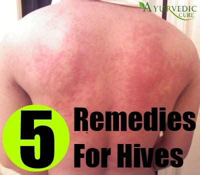 cure for hives picture 14