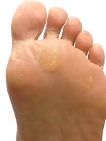 one inch white spots on skin picture 2
