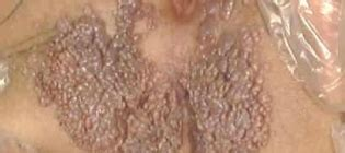anogenital warts picture 15