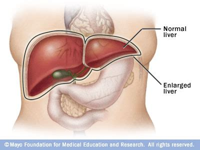 swollen liver symptoms picture 11