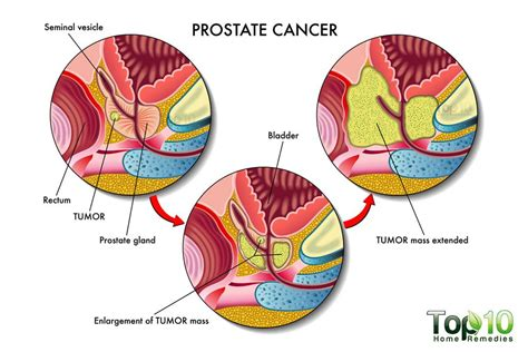 Men health prostate surgery picture 1