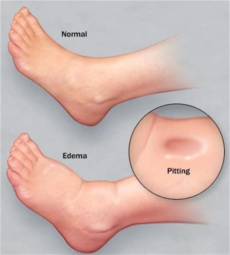 what are symptoms of bladder cancer picture 10