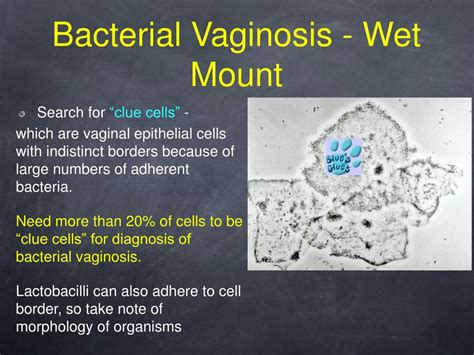 what test are used for bacterial infections in vigina picture 11