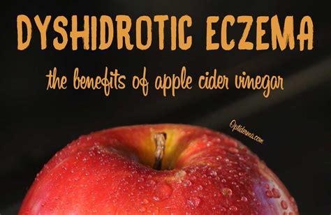 apple vinegar diet benefits picture 7