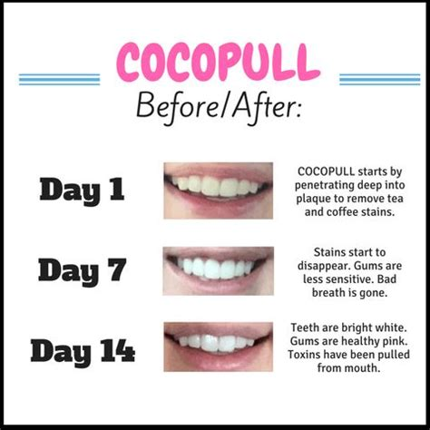 spearmint oil to whiten teeth picture 14