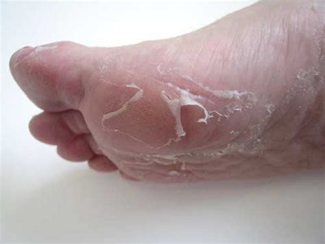 feet skin picture 5