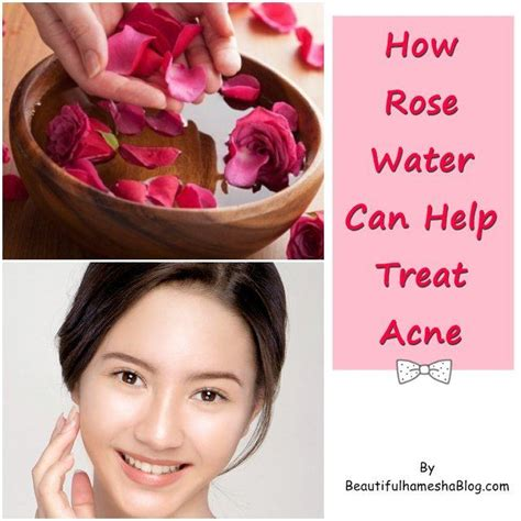 can vitalzym cure acne picture 14