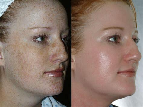 cream to remove stretch marks picture 14