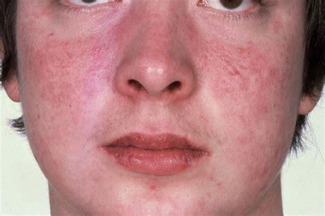 rosacea lupus picture 3