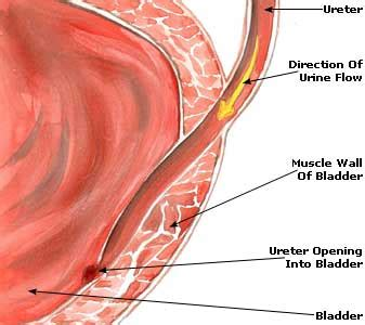 medicine for bladder infection picture 2