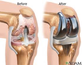 joint replacement picture 14