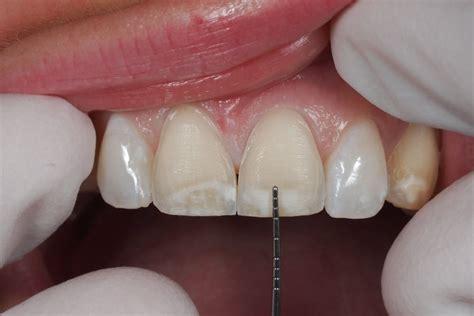 dentist porcelain teeth picture 10