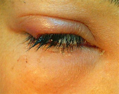 sda cure herpes picture 11