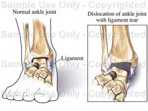 ankle joint recurrent subluxation dislocation picture 1