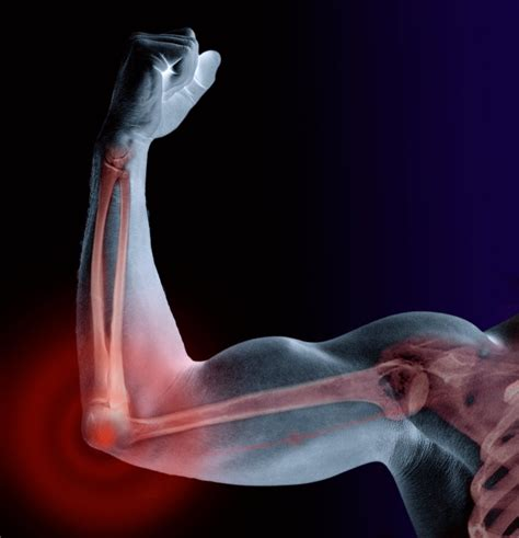 armor and joint pain picture 17