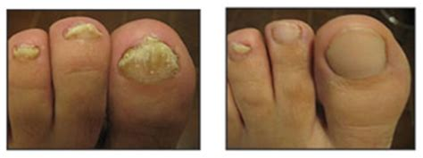 warts and wilson's disease picture 1