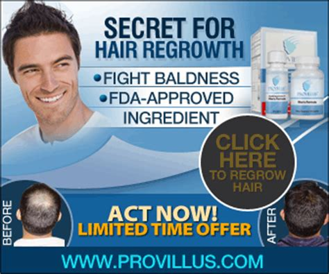 provillus works picture 5