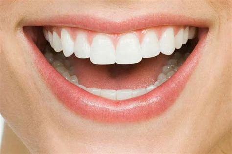 smile teeth picture 3